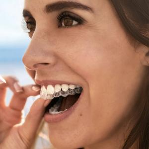 Smile Tech - Invisalign Open Days, Bluewater, Kent